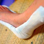 【右足首の剥離骨折-7】お風呂解禁が超嬉しい!骨折49日目、ギプスからギプスシャーレ(半ギプス)へ!